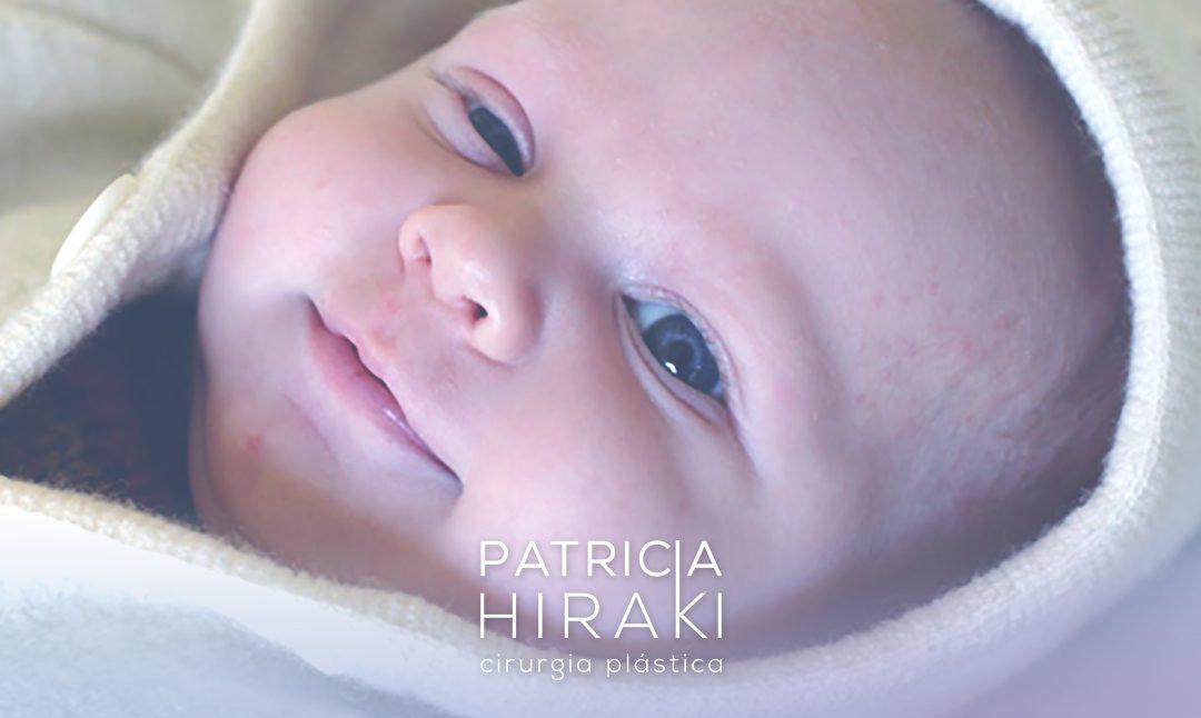 Ptose Palpebral Infantil Congênita – É Possível Operar Ainda na Infância?