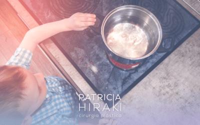 Queimadura com Água Fervente – Evitando Acidentes Domésticos